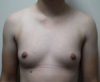 Trans-Male Top Surgery